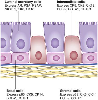 Fabulous Prostate Cancer Sciencedirect Wiring Cloud Hemtshollocom