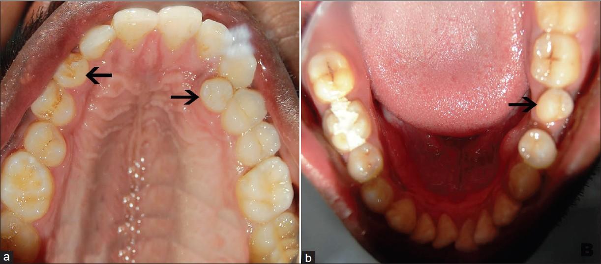 Cool Genetics And Presence Of Non Syndromic Supernumerary Teeth A Wiring Cloud Histehirlexornumapkesianilluminateatxorg
