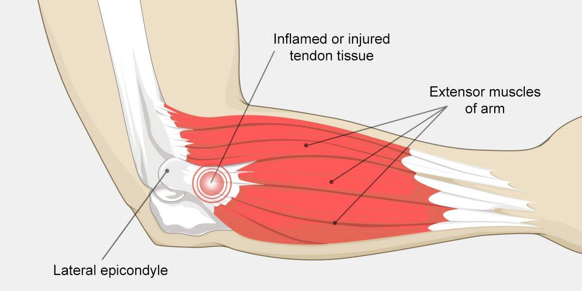arm tendons diagram xw 9077  arm tendons diagram download diagram  xw 9077  arm tendons diagram download